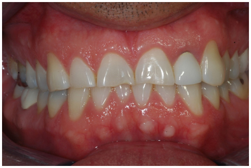 Before full mouth rehabilitation treatment