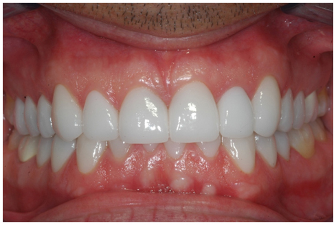 After full mouth rehabilitation treatment