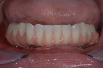 Teeth In A Day Treatment in Mumbai