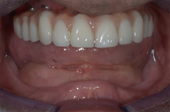 Same Day Dental Implant Treatment in Mumbai