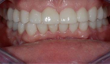 Treatment of Full Mouth Rehabilitation in India