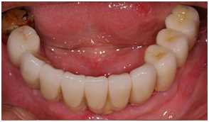 Ceramic Crowns Cemented on The Implants