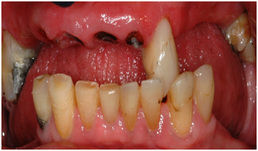 Upper and Lower Jaws Dental Treatment