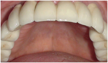 Ceramic Crowns Cemented On 6 Dental Implants