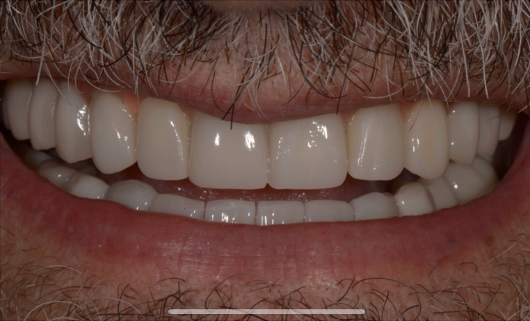 Mouth Restoration At Dental Clinic in India