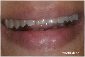 Excessive Bruxism At Dental Clinic in Mumbai