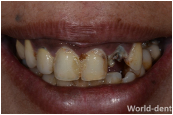 Before Full Mouth Reconstruction Treatment in Mumbai