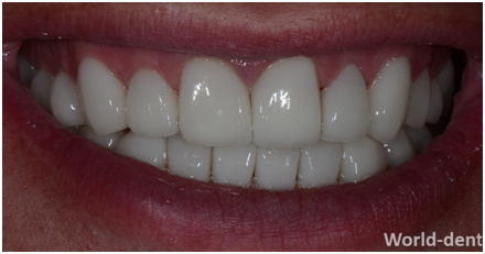 Rehabilitated and Restored with Cosmetic Dentist in Mumbai