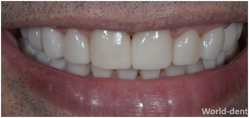 Zirconia Crowns with Dental Implants