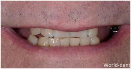 Discoloured Front Teeth And Missing Back Teeth