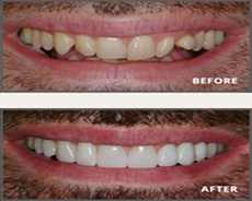 Dental Veneers in Mumbai