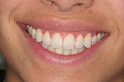 Treatments for Receding Gums in India