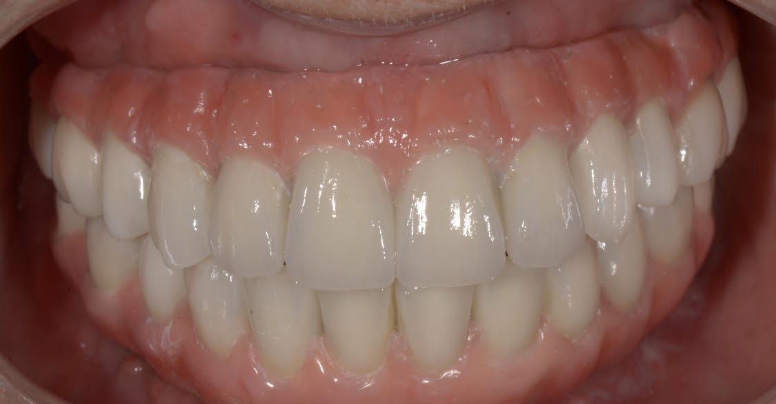 Multiple Tooth Replacement