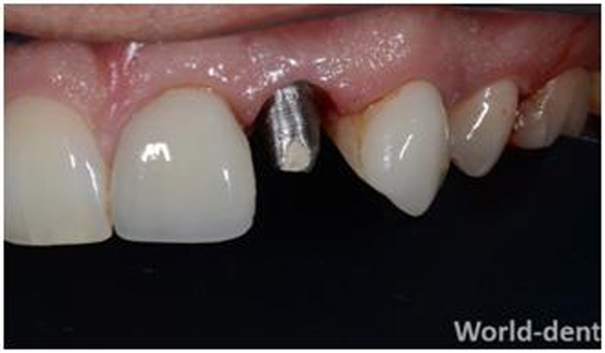 SINGLE INCISOR IMPLANT ABUTMENT