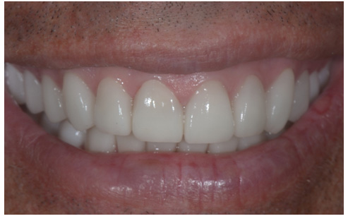 Happy Patients Stories After Dental Treatments
