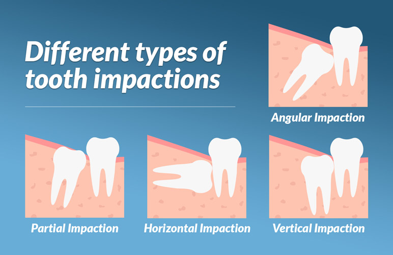 Impacted Teeth Removal Treatment in Mumbai